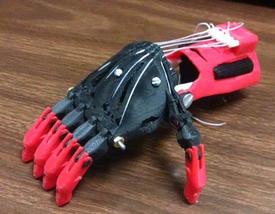 Photo of TWO-YEAR OLD BOY RECEIVES FIRST 3-D PROSTHETIC HAND